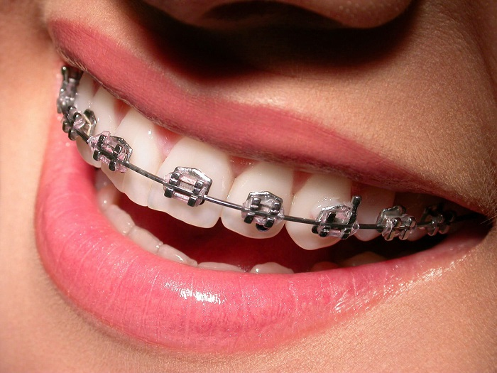 How -to- straighten- your- teeth -at- home- without -the- use- of- braces-555