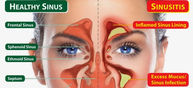 What- is- sinusitis-555