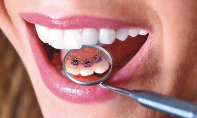 Защо-да-някой- зъбите на хората- растат -скърцани-999