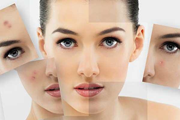 acne-6655