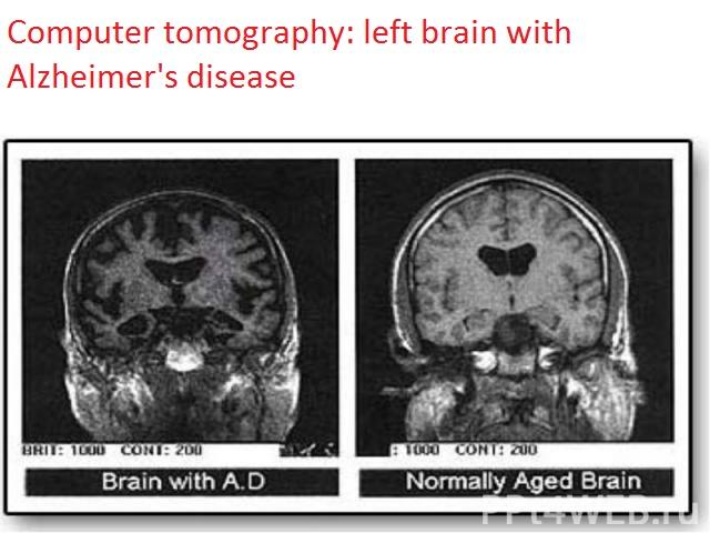 Alzheimer -dispozitie-1-62-3