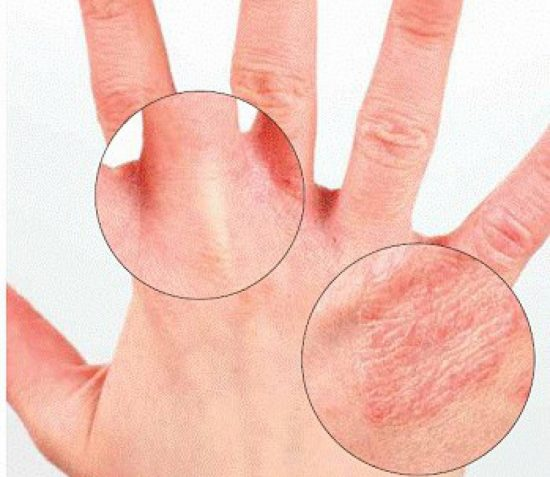 How- to- distinguish- eczema- from- psoriasis-555
