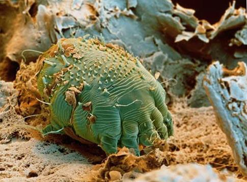 How- to- recognize- scabies-555