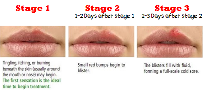 How- to- treat- herpes -on- the- lips-555