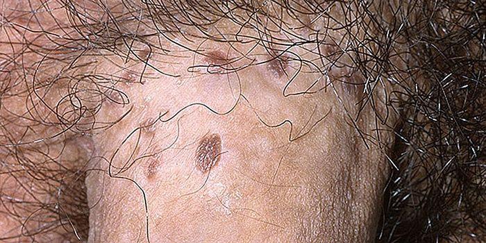 Пенилна бовеноидна папулоза