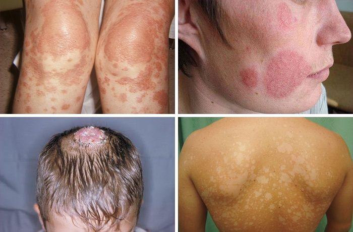 Симптоми на pityriasis versicolor