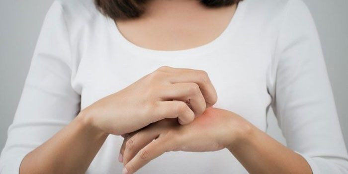 Woman scratches a mosquito bite on her hand