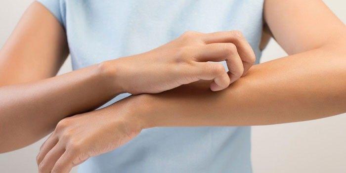 Момиче се почесва по ръката