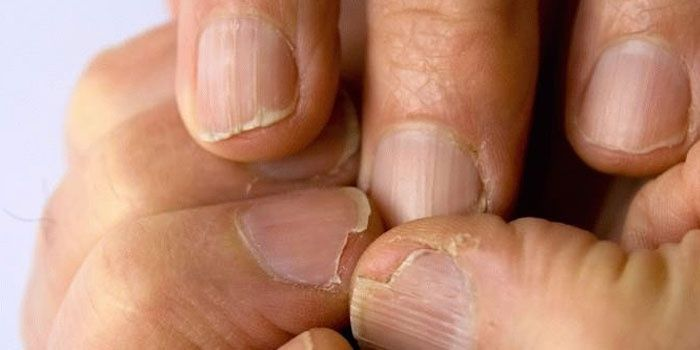 Fungus on the nails of the hands