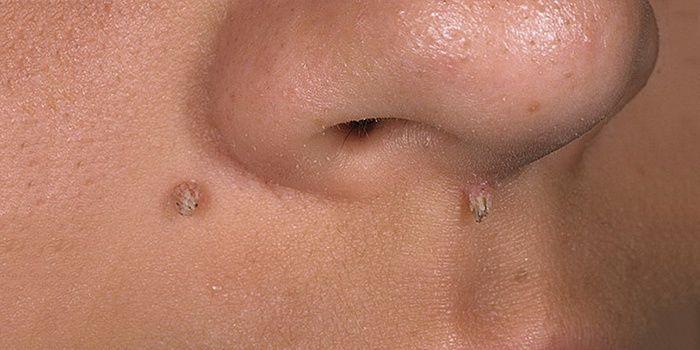 Papillomas on the face