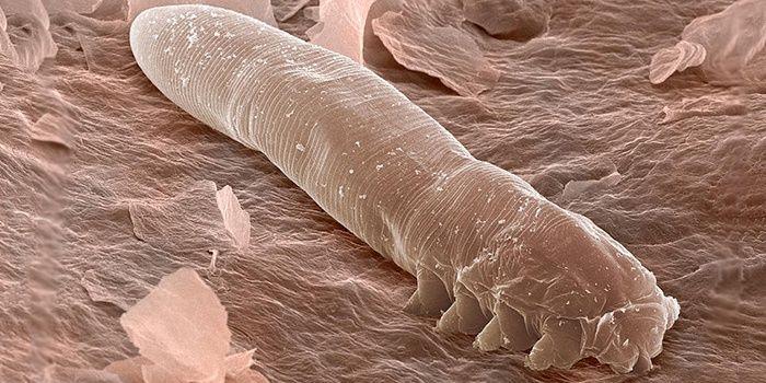 Demodex tick under the microscope