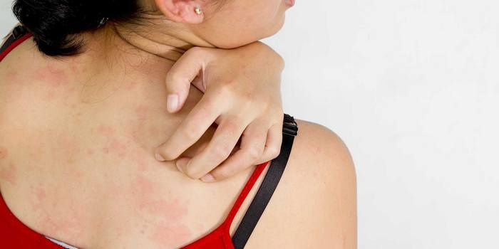 Itchy rash on the skin of the back