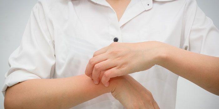 Момичето има сърбяща кожа на ръката