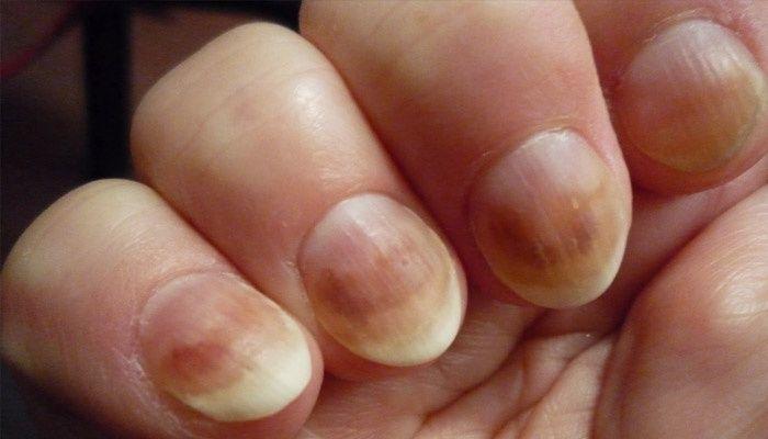 Дрожди за нокти