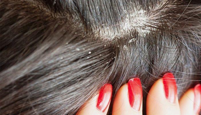 Signs of scalp seborrhea