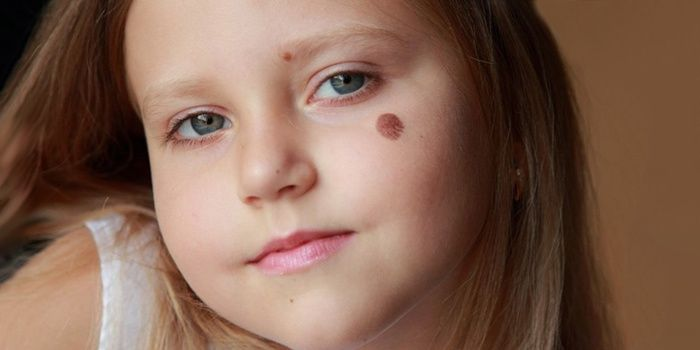 Moles on the face of a child
