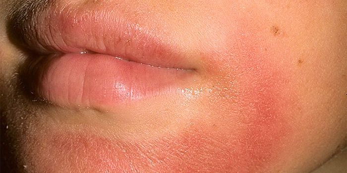 Contact dermatitis on the face
