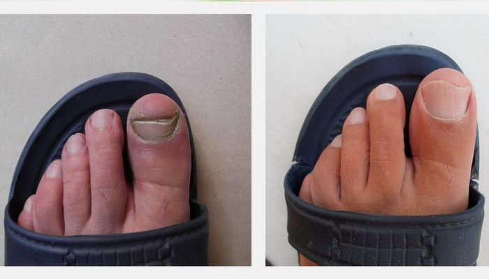 Nails before and after treatment
